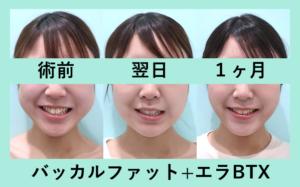 『笑顔が可愛くなる♪3人分まとめてご紹介「バッカルファット術」』の画像
