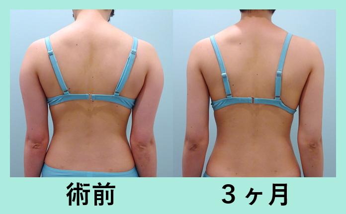 二の腕肩付け根脂肪吸引_術後3ヶ月、全身脂肪吸引
