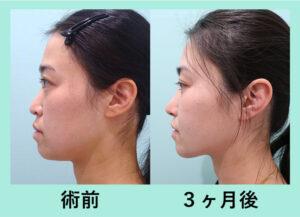 『鼻尖と小鼻、小顔治療の手術を、すべて一日で可能に!』の画像