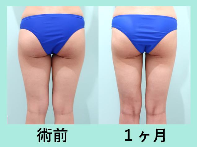 太もも全周脂肪吸引、臀部脂肪吸引_術後1ヶ月ダウンタイム、自然