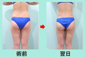 『広範囲かつ4.5L大量脂肪吸引でも内出血なし!!「背中腰臀部太もも後面膝 の脂肪吸引」』の画像