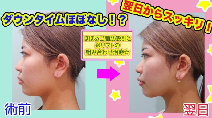 小顔 脂肪吸引  ビフォーアフター