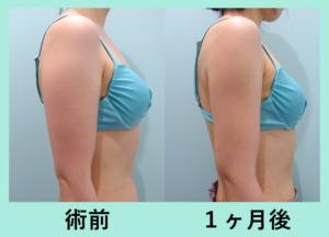 『後ろ姿美人に「二の腕肩付け根の脂肪吸引」』の画像