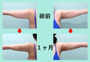 『劇的ビフォーアフター!!「二の腕肩付け根+副乳の脂肪吸引」』の画像
