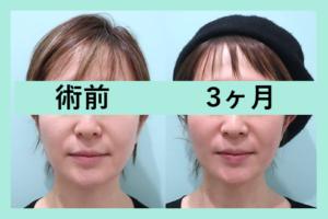 『整形した感ゼロ!? ビフォーアフター3人分ご紹介「小顔組み合わせ治療」』の画像