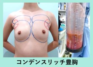 『最も優れた豊胸治療です「コンデンスリッチ豊胸」』の画像