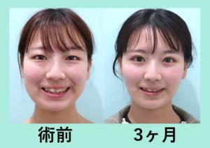 『高度なテクニックで輪郭の左右差を改善!!「小顔組み合わせ治療」』の画像