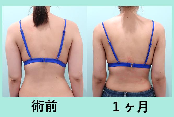 二の腕肩付け根+副乳脂肪吸引_術後1ヶ月ダウンタイム