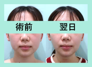 『施術翌日でも笑った時の変化が凄い!3人分まとめてご紹介します「小顔組み合わせ治療」』の画像