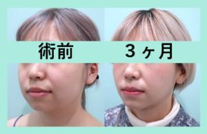 『ビフォーアフター3人分まとめてご紹介☆ 組み合わせるとめちゃ変わります!!「小顔組み合わせ治療」』の画像