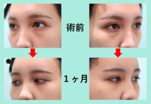 『目の下脂肪取りのみ「クマ治療」』の画像