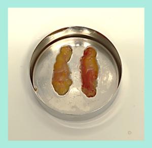 『めちゃパッチリの可愛い二重に!「二重組み合わせ治療」』の画像