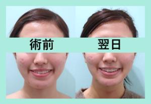 『3人まとめて施術翌日の経過をご紹介☆ 顎先ボトックスの威力をみよ!「小顔組み合わせ治療」』の画像
