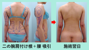『全身の脂肪吸引の方です「二の腕肩付け根+腰(他院修正)+腹部全体 の脂肪吸引」』の画像