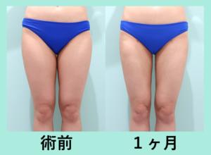 『ナチュラルな細さに「太もも全周下臀の脂肪吸引」』の画像