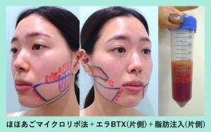 『超高難易度テクニックで顔の左右差を改善!? WOMでしか受けられない顔の脂肪同時移植「小顔組み合わせ治療」』の画像