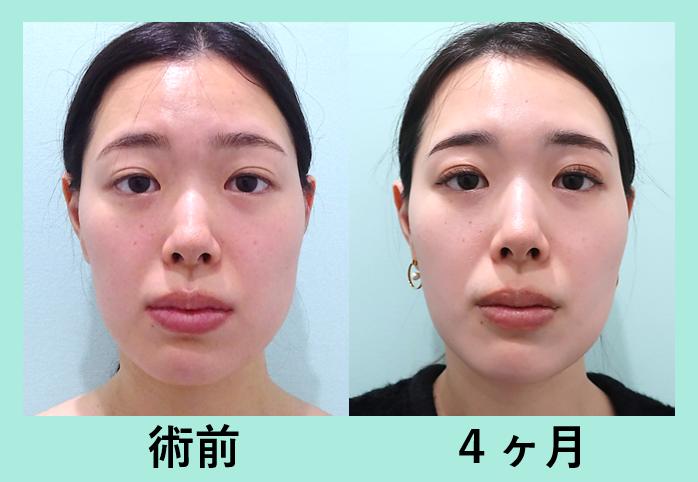 頬の脂肪注入、頬コケ_術後4か月 左右差改善