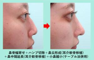 『骨切り、鼻中隔延長でエレガントな鼻に! しかもクローズ法』の画像