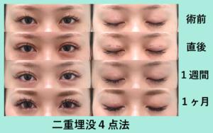 『バッチリ平行型に♡「二重埋没4点法」』の画像