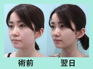 『施術翌日の経過を3人分まとめてご紹介「小顔組み合わせ治療」』の画像