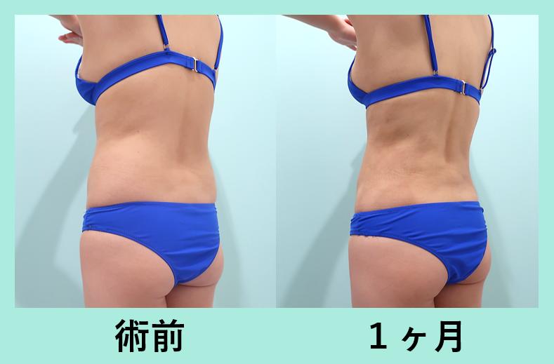 お腹、胸下、腰の脂肪吸引_術後1ヶ月ダウンタイム、くびれ