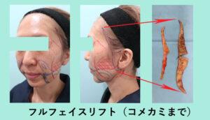 『切開フェイスリフト術後の腫れが、すっ、凄過ぎる!!』の画像