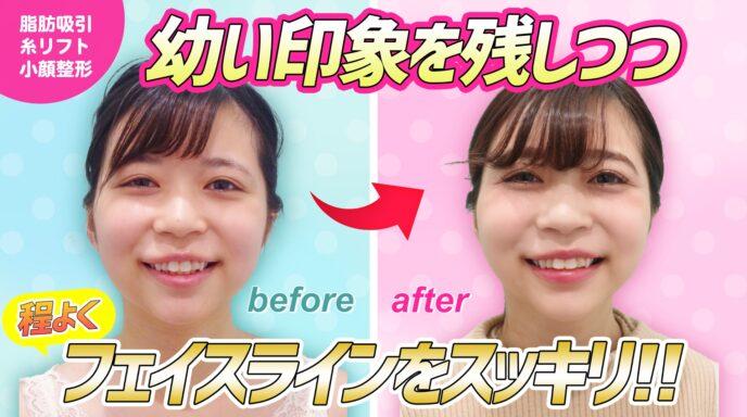 頬と顎下_脂肪吸引_エラボトックス_糸リフト_顎先ボトックス