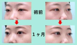 『「クマ」+「二重」の同時治療で目の周りの印象がガラリと変わります!!』の画像