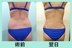 『一度に全部吸い出します。超広範囲脂肪吸引(腹部~腰・背中)!』の画像