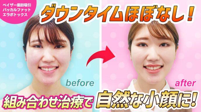頬と顎下_脂肪吸引_バッカルファット_エラボトックス
