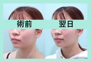 『施術翌日からすっきりしちゃう!? 3人分まとめてご紹介「小顔マイクロリポ法」』の画像