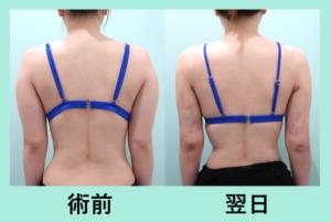 『沢山吸引しても内出血最小限!「二の腕肩付け根の脂肪吸引」』の画像