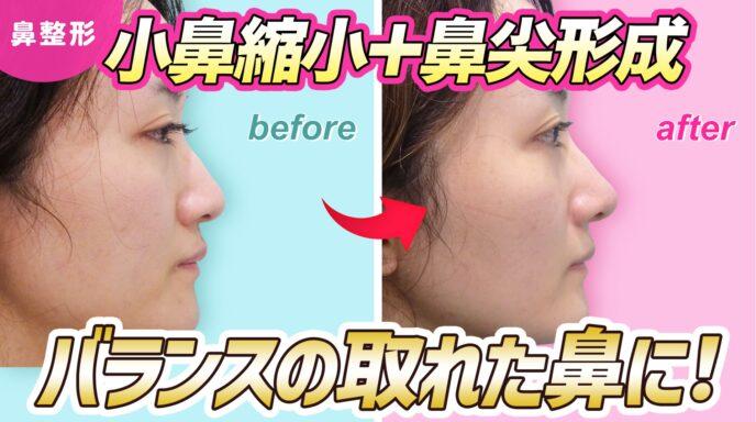 鼻_鼻翼縮小_ケーブル法_鼻尖形成3D法_耳介軟骨移植