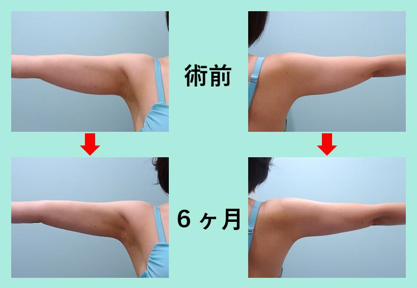 二の腕肩付け根脂肪吸引+ベイザー_術後6ヶ月ダウンタイム