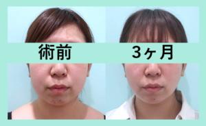 『圧倒的な変化!ここまで変われます!ビフォーアフター3人分まとめてご紹介「小顔組み合わせ治療」』の画像