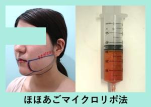 『糸リフトアップは必要? 翌日の経過3人分まとめてご紹介「小顔組み合わせ治療」』の画像