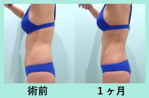 『胴体ぐるっと細くする!「腹部全体背中腰の脂肪吸引」』の画像