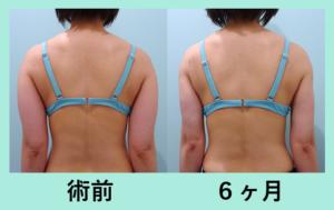 『しっかり細くなる「二の腕肩付け根の脂肪吸引」』の画像