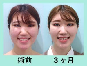 『イメージ激変!3人分まとめてビフォーアフターご紹介「小顔組み合わせ治療」』の画像