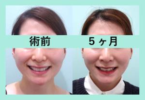 『フェイスラインスッキリ!ビフォーアフター3人分まとめてご紹介「小顔マイクロリポ法」』の画像