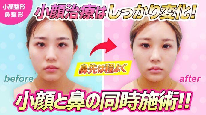 小顔と鼻_マイクロリポ法_バッカルファット_鼻尖形成3D法
