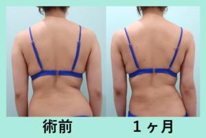 『弛まずにビシッと細くなりました!「二の腕肩付け根の脂肪吸引」』の画像