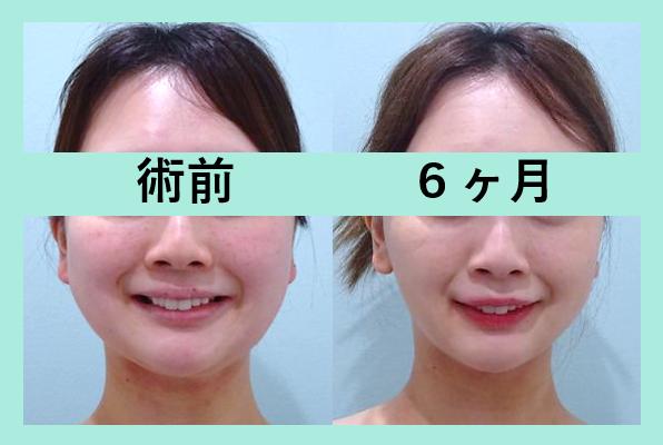 頬と顎下の脂肪吸引+ベイザー_術後6ヶ月ダウンタイム
