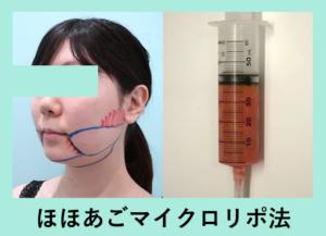『しっかり変わる! ビフォーアフター3人分まとめてご紹介「小顔組み合わせ治療」』の画像