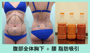 『ダウンタイム最少を目指しています!広範囲脂肪吸引の術後!』の画像