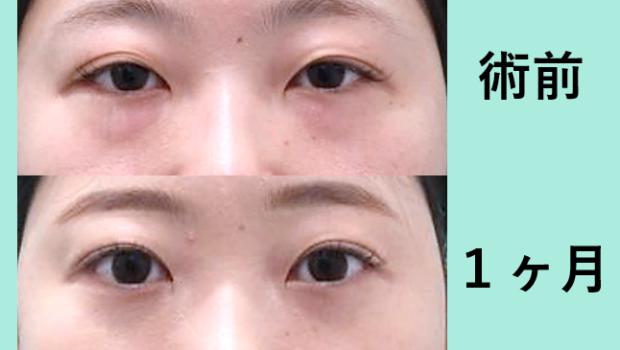目の下脂肪取り+二重埋没4点法、クマ取り_術後1ヶ月ダウンタイム