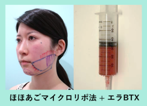 『ボトックスとの組み合わせでばっちり小顔に!ビフォーアフター3人分ご紹介します「小顔マイクロリポ法」』の画像
