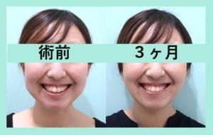『顔の脂肪再配置 WOM CLINIC ならではの高度な組み合わせ治療』の画像