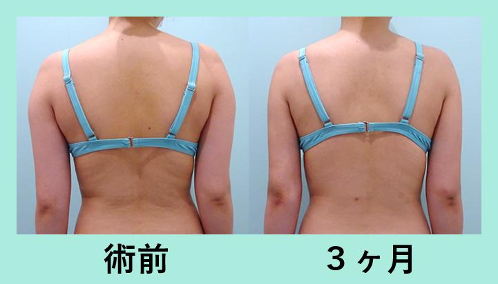 二の腕肩付け根脂肪吸引_術後3ヶ月