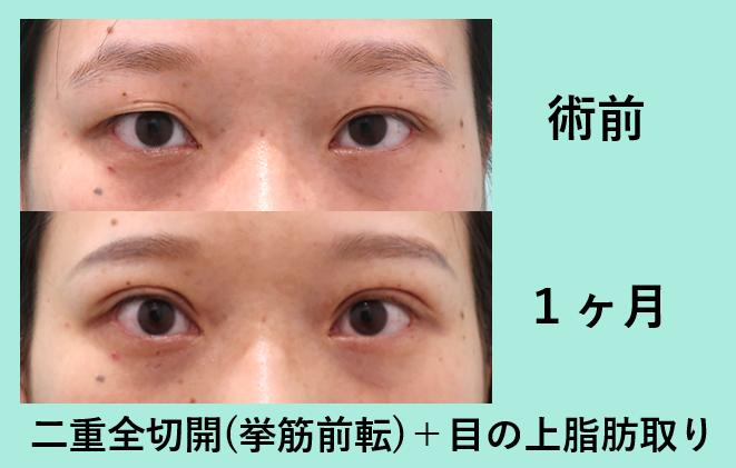 二重全切開+挙筋短縮、挙筋前転、眼瞼下垂_術後1ヶ月